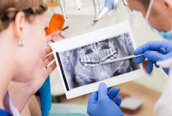 Dental X-ray or exam