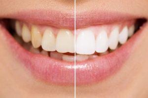Get Pola teeth whitening in Leederville, West Australia