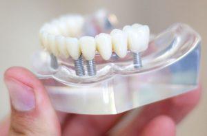 Dental implants on lower jaw