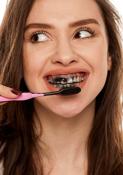 Dangers of charcoal toothpaste